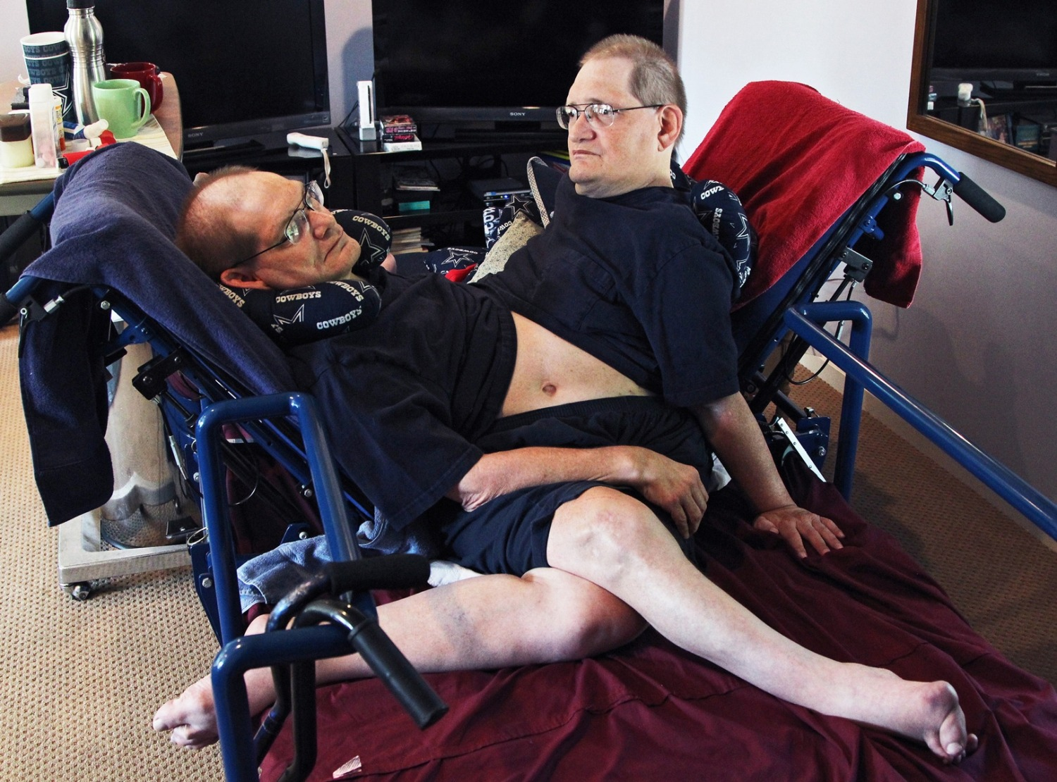 Donnie, left, and Ronnie Galyon sit inside their Beavercreek, Ohio, home on Wednesday, July 2, 2014. Donnie and Ronnie are nearing the record for longest living conjoined twins. The Galyons, born Oct. 28, 1951 at St. Elizabeth Hospital in Dayton, now live in Beavercreek with their brother, Jim Galyon and his wife Mary, who provide 24-7 care for them.